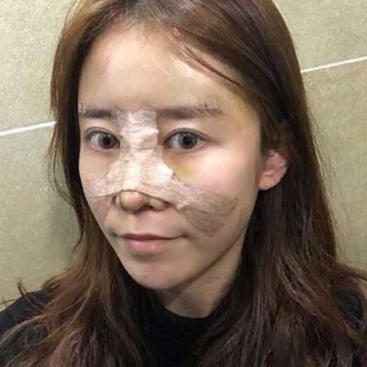 外面的纱布拆掉前她觉得很闷而且很期待自己的鼻子到底变成什么样