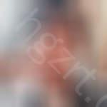 不信你不心动,男生到广州壹加壹整形医院隆鼻效果后不是一般的帅气。