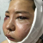 一直念叨和哥们到北京八大处做下颌角,颧骨的,谁知一狠心去韩国做改脸型手术后变帅GG了