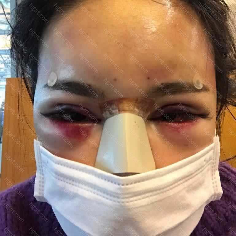 我今天去医院把鼻子的纱布取了