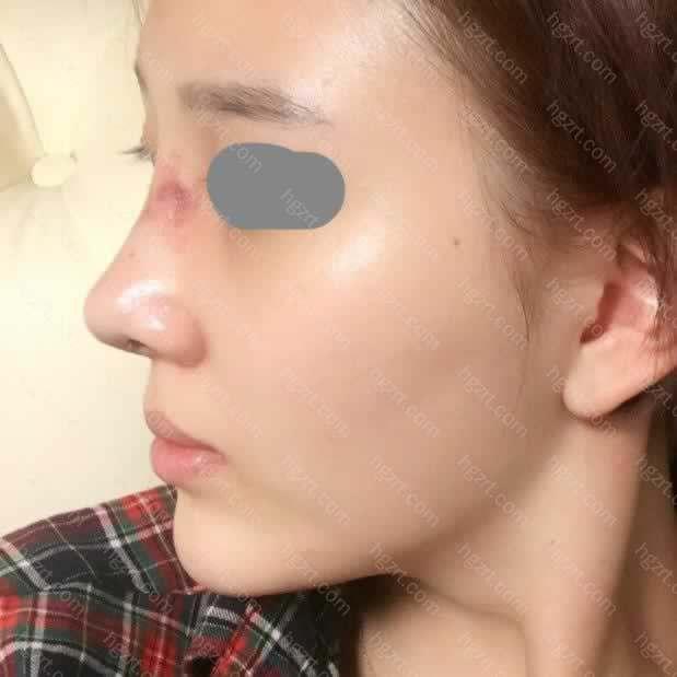 鼻子去年7月在美容院里打过一次玻尿酸