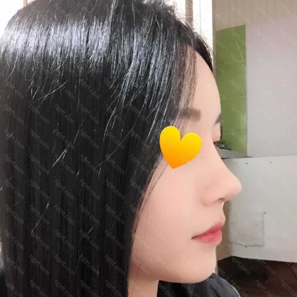 拆完鼻子里面的线后可以化上美美的妆容去Happy啦~跟闰密一起去逛街约会完全木有问题!!!