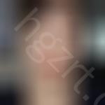 到韩国crapas整形医院做上眼睑去脂马上满一年,今天来聊聊我的心路历程