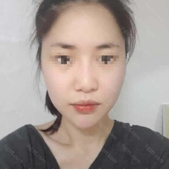 我在5年前有做过一次鼻子手术的
