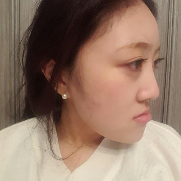 猴开森凸嘴手术恢复好了,我是在韩国做双鄂手术费用能接受,主要是效果好改善了突嘴。