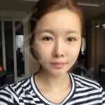 困扰多年的心病选择韩国soonplus医院做修复双眼皮终于给解决掉了