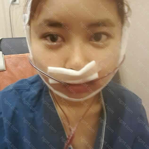 医生很认真地看完我的脸型和CT拍出来的骨骼照片之后