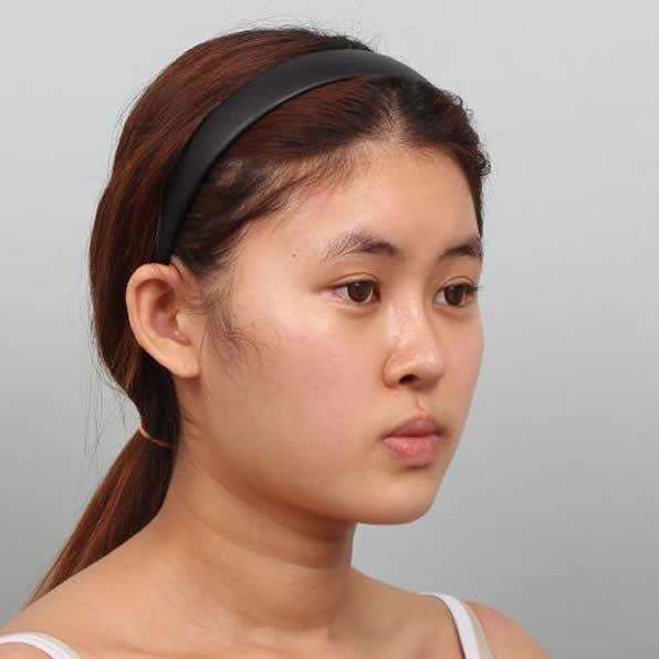 好事共享,北京凸嘴手术哪家医院好,认真瞅下我的矫正自然就明白了。