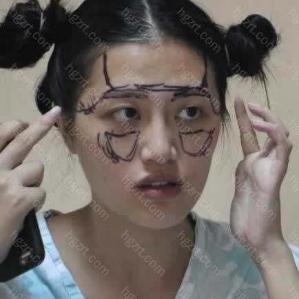 麻醉老师也是上海人