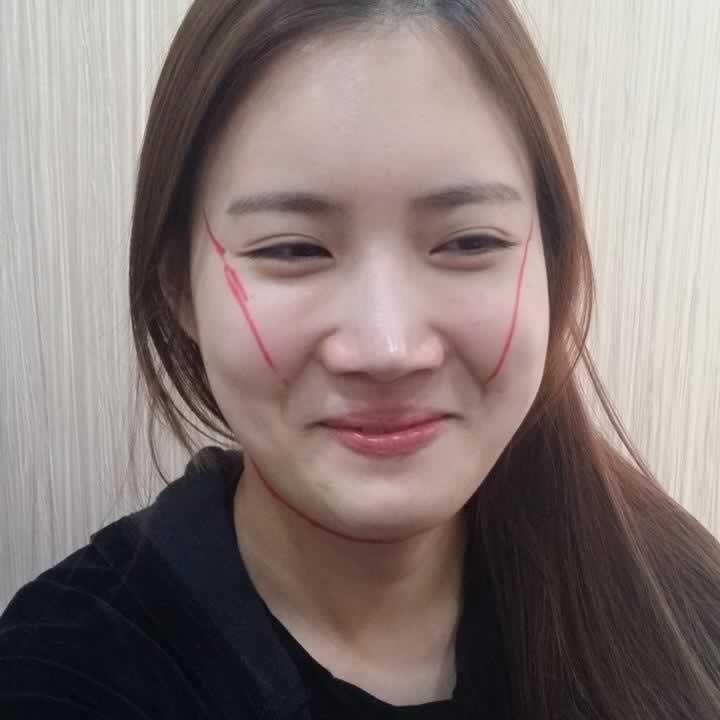 担心在韩国id医院做颧骨颧弓手术有危险?我告诉你的担心是多余的。