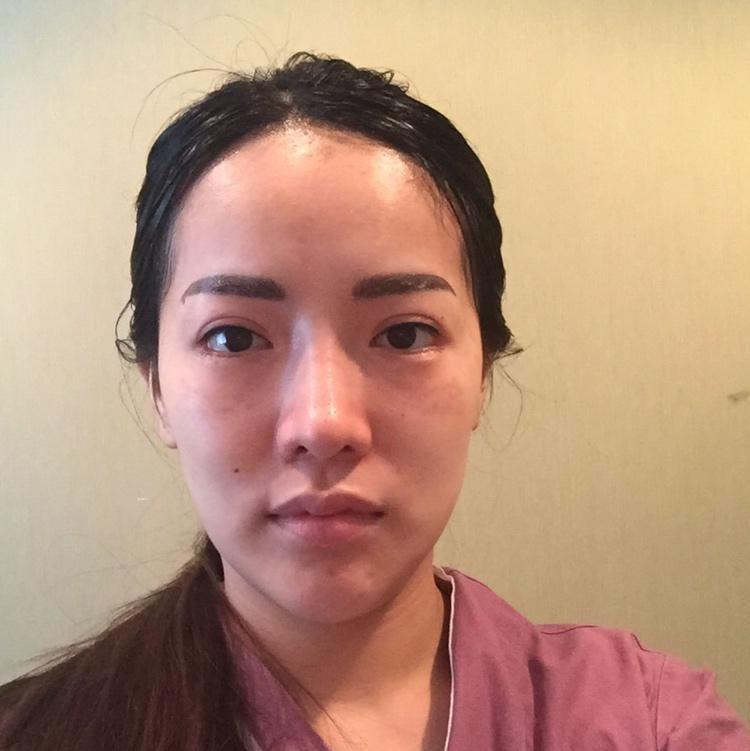 韩国hb整形医院唇部整形案例效果让我眼前一亮,就决定做了厚唇改薄手术