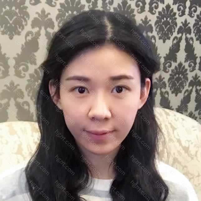羡慕家里的小姑姑到上海九院做凸嘴矫正后的改变