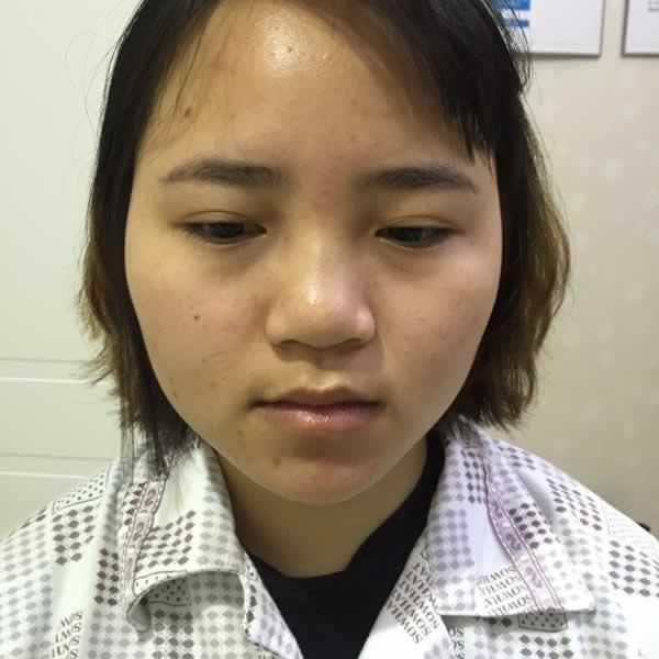"""重庆时光整形美容医院鼻综合手术让找回了自信,脸上就写两个字""""漂亮"""""""