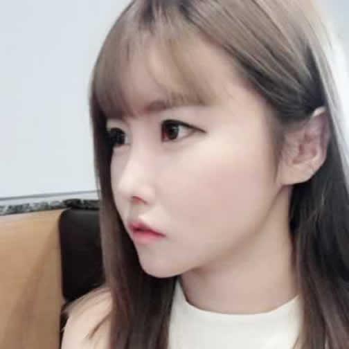 上下颚手术变化图,到韩国做完手术之后都说我是韩国小姐姐。