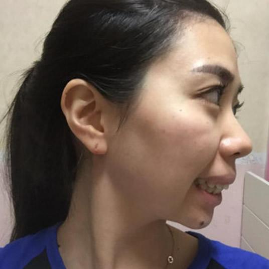 在上海伊莱美医疗美容医院做凸嘴矫正手术改善了20多年的突嘴,差点喜极而泣。