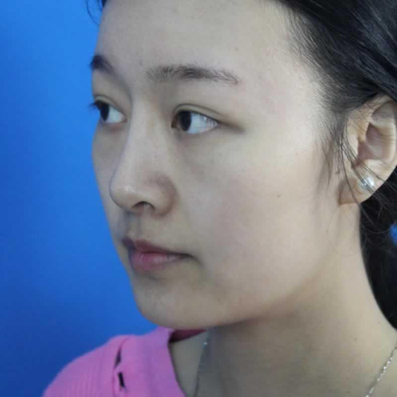 在贵阳美莱医疗美容医院做的鼻综合真的变漂亮了,但是整容真的会上瘾我又做了其他的项目
