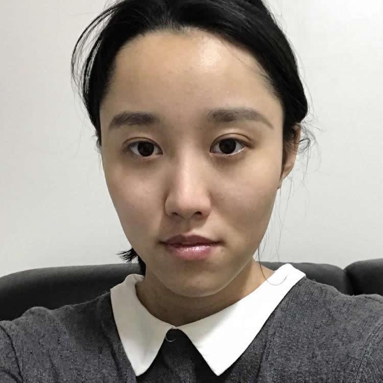 韩国做的上下颚手术和突嘴矫正效果很完美,现在的我完全变成小仙女了。