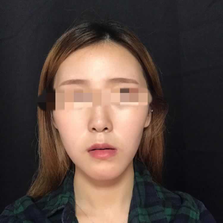 很多人想知道去韩国做上下颚手术需要坐牙齿矫正吗?反正我做牙齿矫正了。