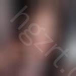 韩国eu医院给做了vline瓜子脸手术,果然没让集美失望