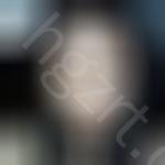 咨询了韩国crapas医院隆鼻的优势后,做的玻尿酸隆鼻的恢复经历来啦