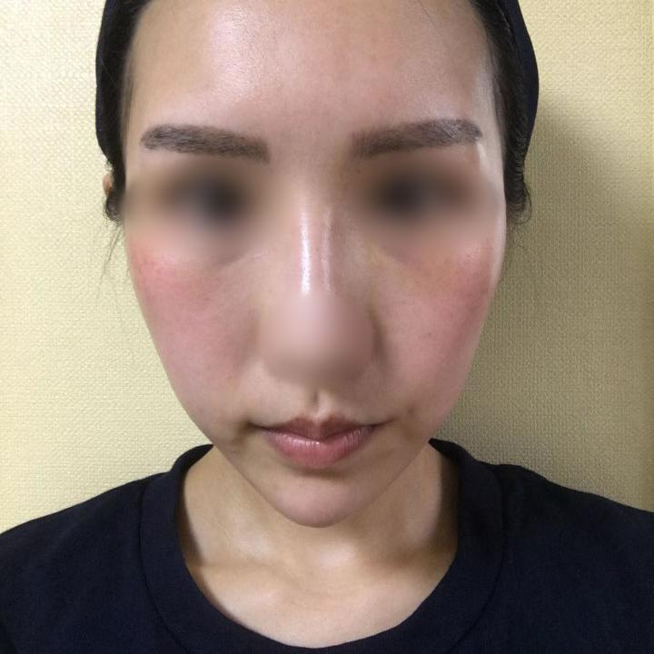 脑子一热找韩国芭堂整形医院做了额头缩小手术,小脸梦从此实现!