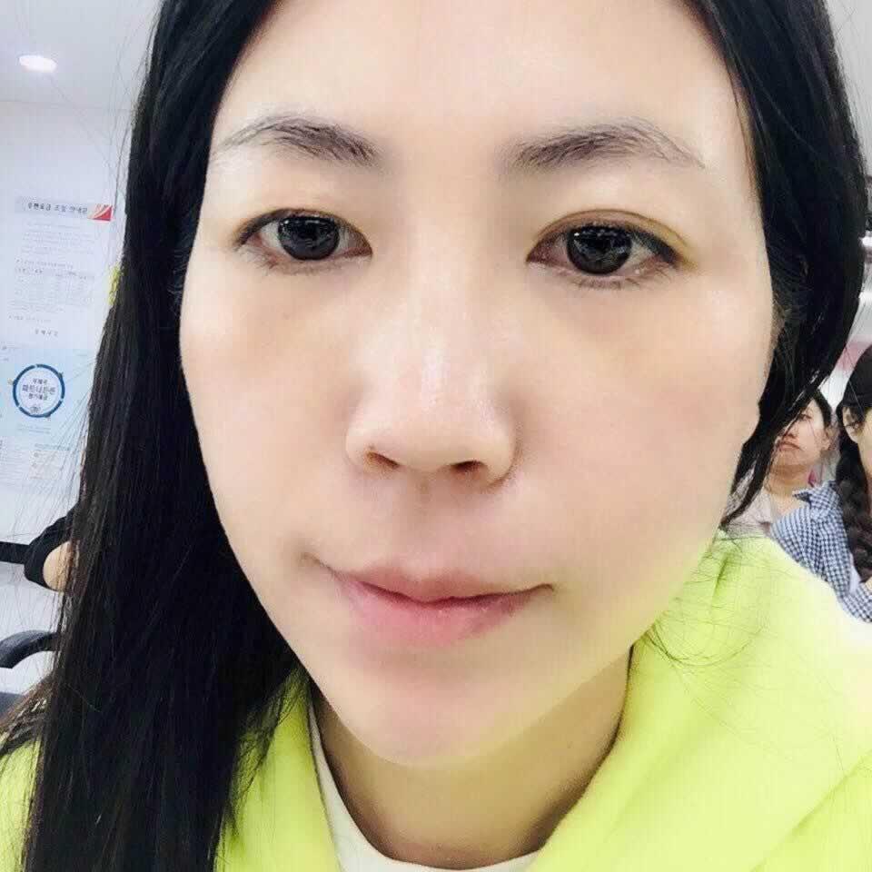 找北京东方和谐冯斌做吸脂后再进行面部自体脂肪移植填充效果惊艳到我了