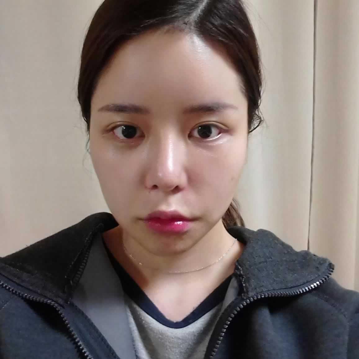 去韩国做颧骨内推这个手术还是可以的,我做的颧骨内推整个脸型都变的好看了