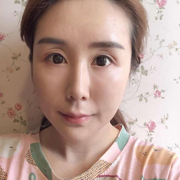 一起探讨好案例!重庆华美医院面部埋线提升成就你的美颜心