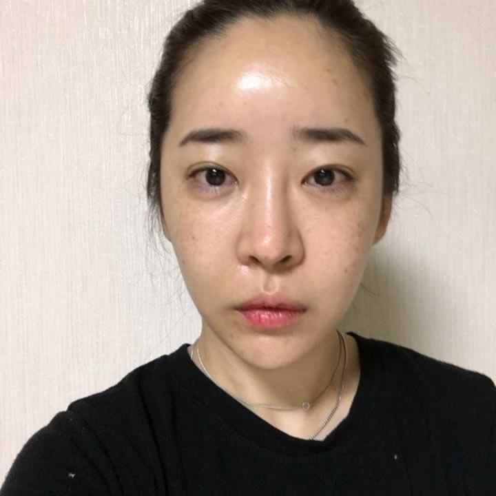 韩国做的鼻部修复手术+眼睛修复手术恢复案例。大家一定要选择好的医院