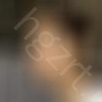 下颌角手术有没有做失败的?还好我选择韩国原辰整形医院术后真的很有保障。