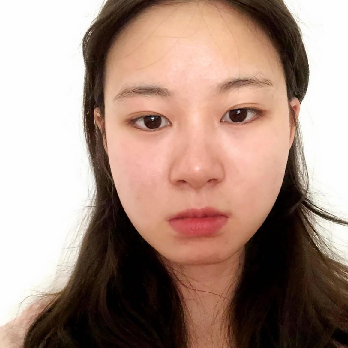 """韩国small face整形外科 的 美丽体验 """"上下颚骨整形"""""""