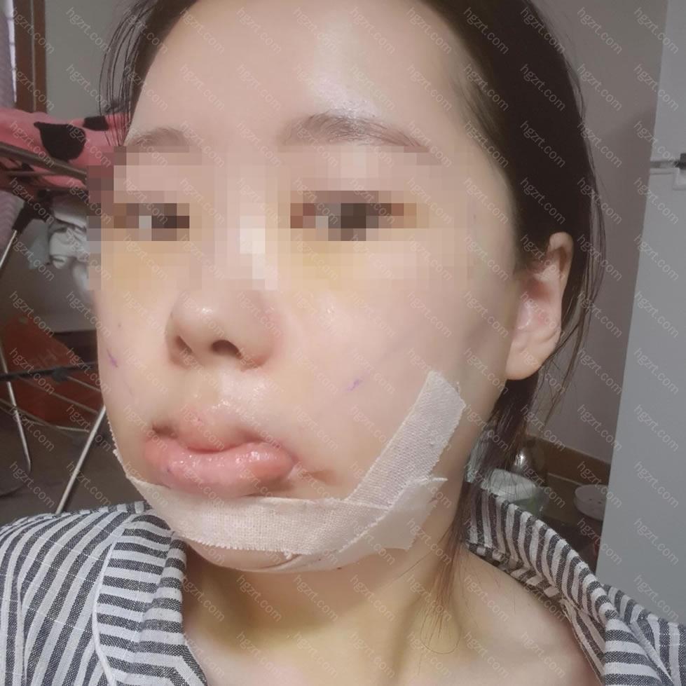双颚手术、下巴缩小、面部不对称、颧骨缩小