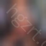 惊呆!找韩国在敦整形外科做突嘴矫正,改变不是一点点