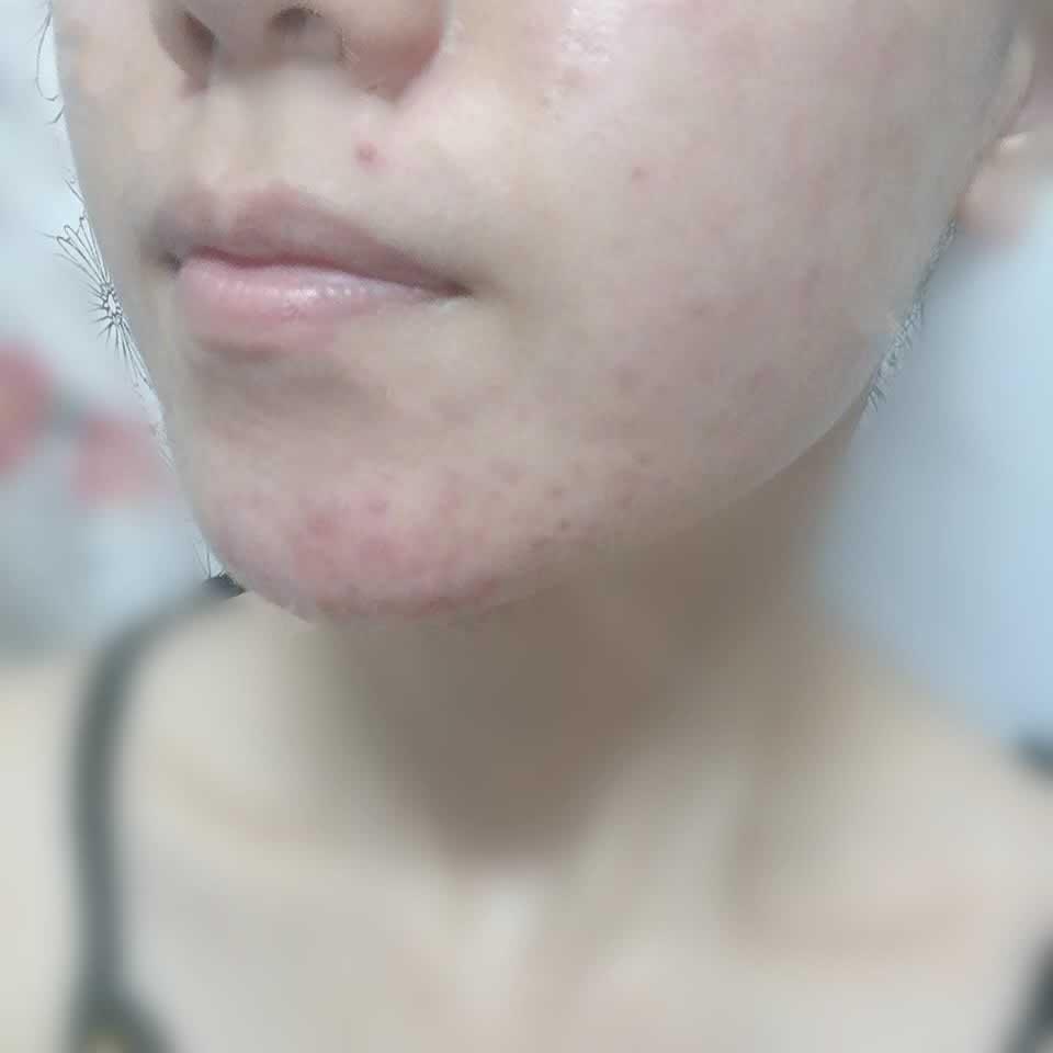 深圳非凡医疗美容医院微针祛痘后我的脸像是鸡蛋清一样光滑了。