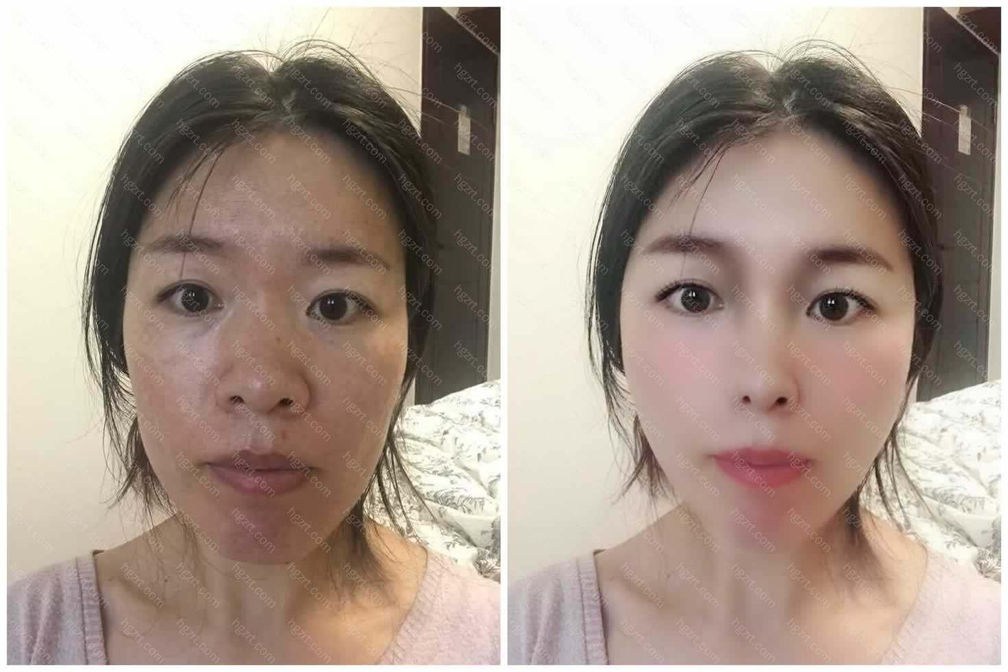天哪!土里土气的姐姐模拟了全脸自体脂肪填充后是什么神仙颜值呀