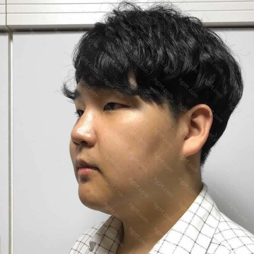 【面部不对称矫正第70天】做完手术两个多月了