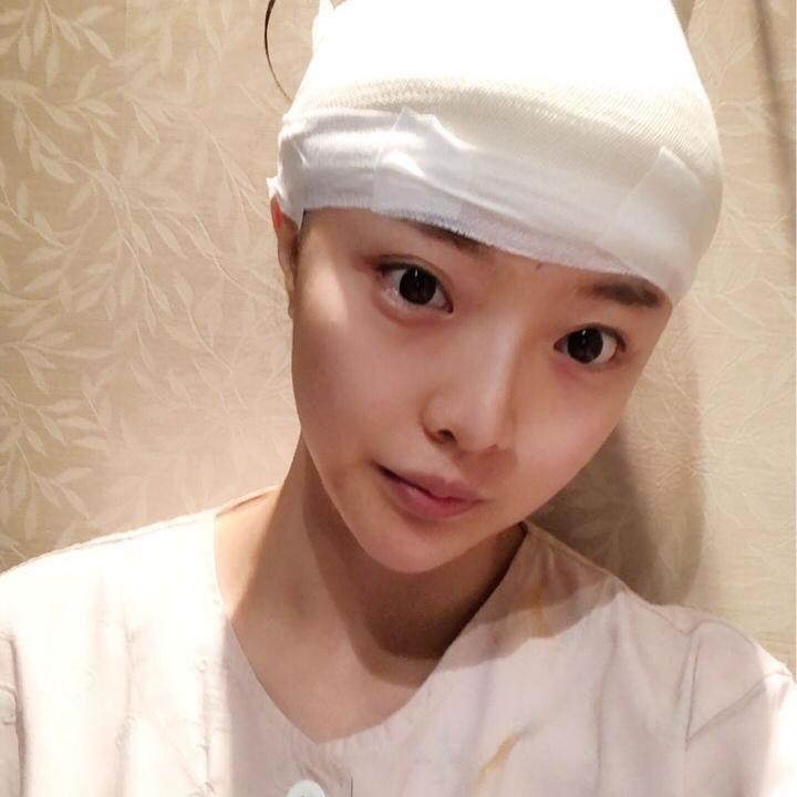 挺秃然的,我在韩国芭堂整形做完额头缩小术后问题算是解决niao