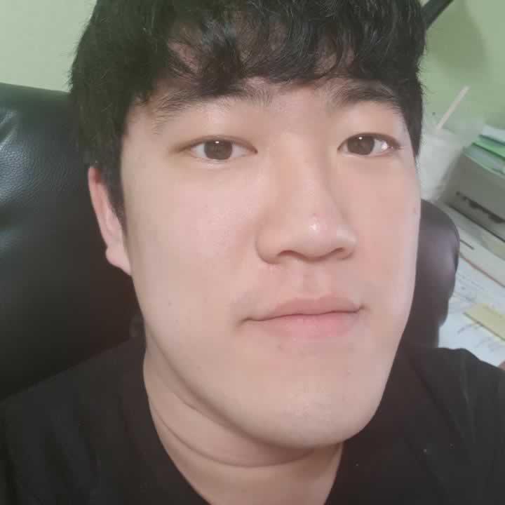 地包天手术怎么做?我在韩国医院做的地包天手术感觉不错。