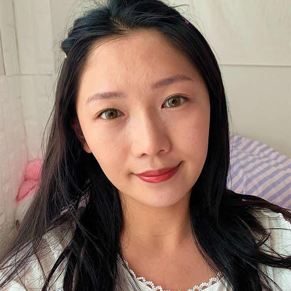 长沙雅美医疗美容医院微针祛痘效果如何,个人真实案例觉得特别好。