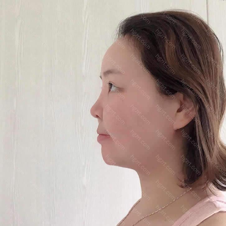 我选择的沈阳盛京尚美医疗美容医院环境规模都不错