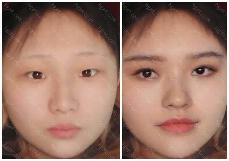 亲亲模拟了假体隆鼻和双眼皮后改善成林允的模样还是很像的吧