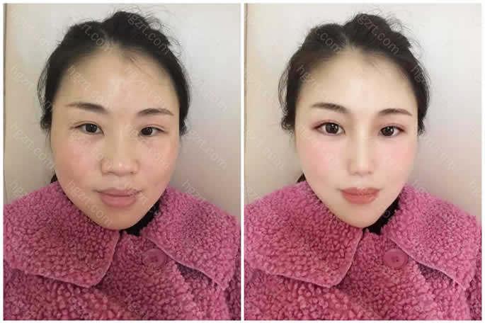 特别想变美的姑娘给她设计了面部吸脂和假体隆鼻效果
