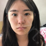 到韩国nano整形医院做鼻综合咯,身边好多小姐妹看到效果后也想做