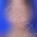 韩国soonplus医院做眼部修复手术怎么样?看看me的效果就知道