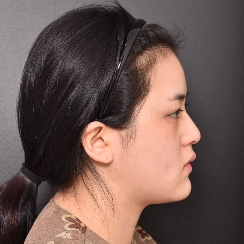 今年在韩国gridaps整形外科做埋线双眼皮后终于圆了我的大眼梦!