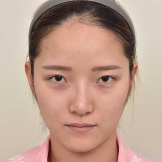 切开双眼皮手术我推荐太原军大医疗美容医院,不然十有八九你会后悔的。