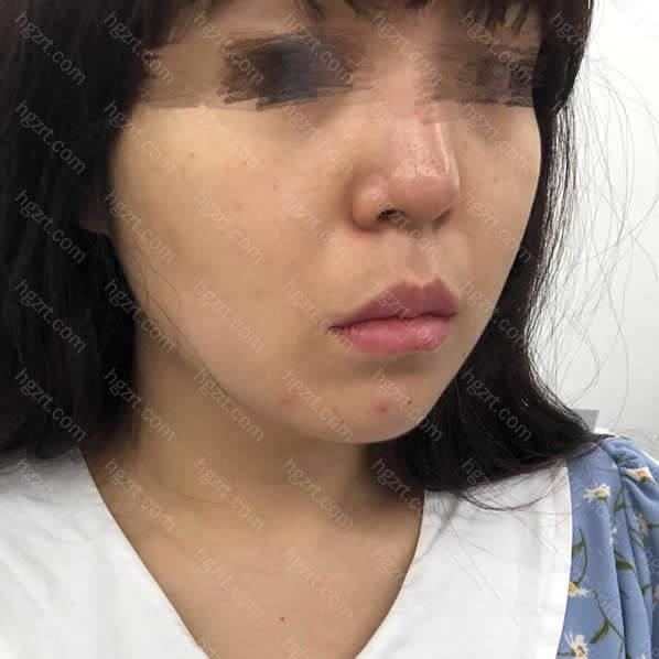 我的面部线条看起来很松弛