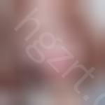 有一说一,朋友们看了我在韩国pop整形医院做的鼻部修复效果图都说这钱花的值