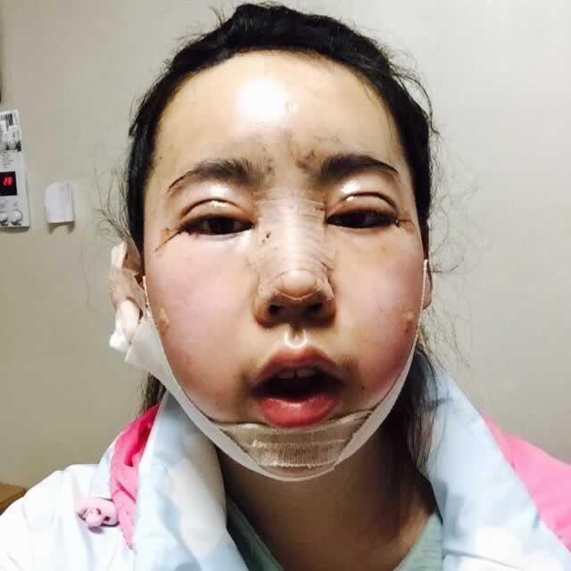 我做了眼部多项、硅胶隆鼻和切开埋线双眼皮怎么样,看我术后一年的回复效果,大家看完心动了吗?