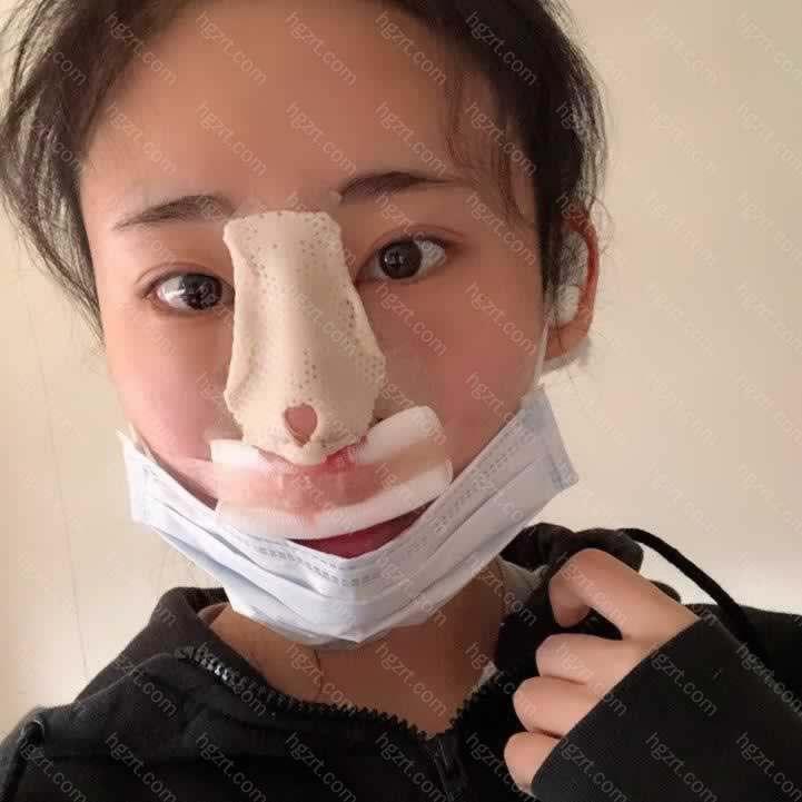 手术前我从侧面看鼻尖短